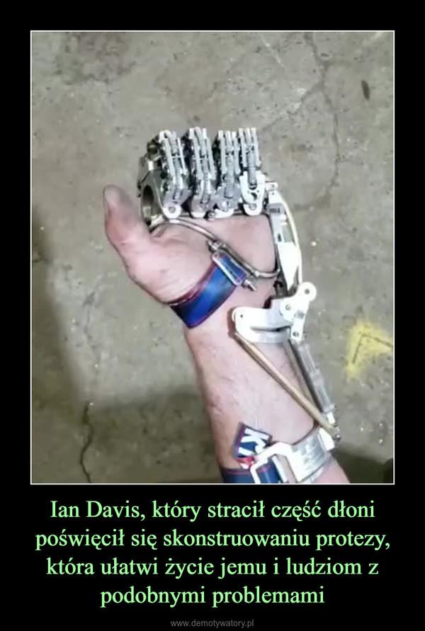 Ian Davis, który stracił część dłoni poświęcił się skonstruowaniu protezy, która ułatwi życie jemu i ludziom z podobnymi problemami –